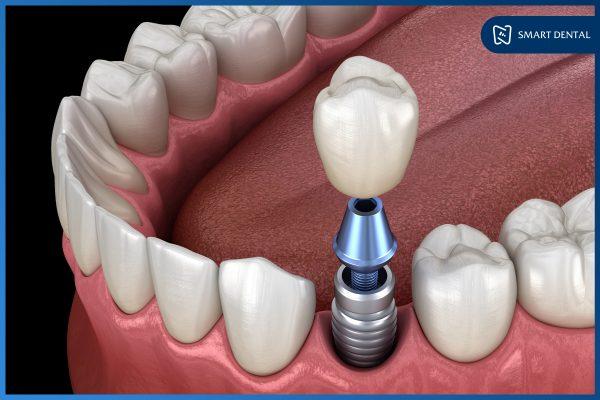 Công nghệ cấy ghép Implant thế hệ mới- An toàn - Không đau 1
