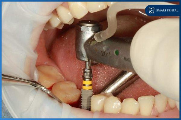 Thời gian trồng răng Implant mất bao lâu? 5 Yếu tố ảnh hưởng trực tiếp 2