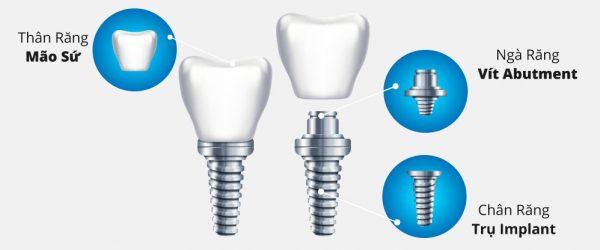 Trụ implant 1