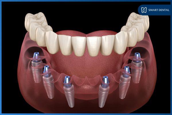 Trồng răng Implant nguyên hàm phục hồi mất răng toàn diện 3