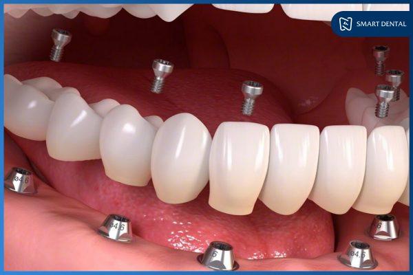 Trồng răng Implant nguyên hàm phục hồi mất răng toàn diện 1