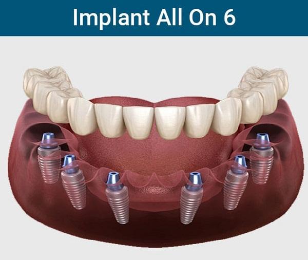 cấy ghép implant all on 6 1