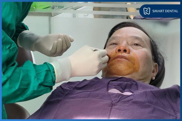 cấy ghép implant all on 6 5