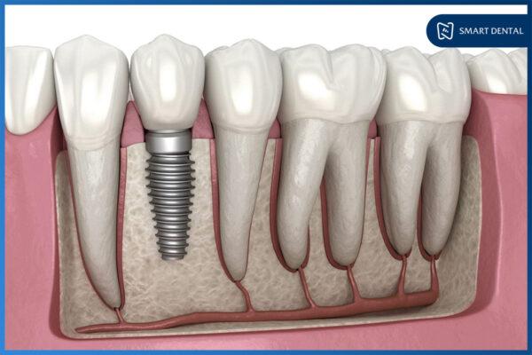 Có nên trồng răng Implant không? 4 Lý do cực kỳ thuyết phục! 4