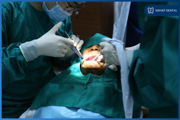 Ghép xương cấy implant có đau không 3