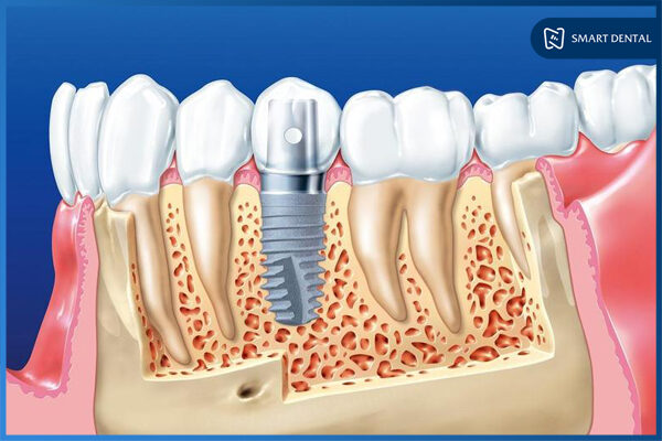 Thời gian trồng răng Implant mất bao lâu? 5 Yếu tố ảnh hưởng trực tiếp 1
