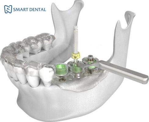 Trồng răng implant bao lâu thì lành 3